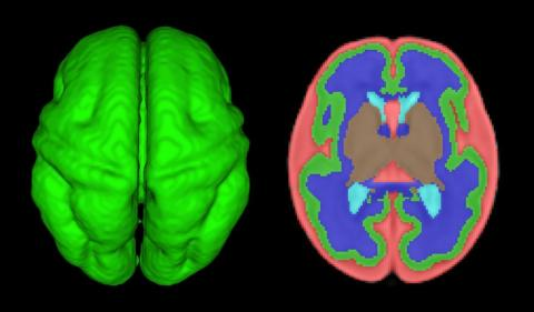 Quantitative volumetric MRI analysis of the fetal brain: Axial view of 3D fetal cortex and computer based segmentation