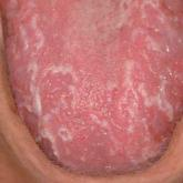 Large, well-delineated, shiny, smooth, erythematous spots on the surface of the tongue