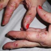 Palmar erythematous scaly plaques with scattered pustules