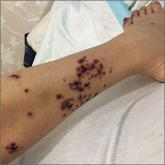 Hemorrhagic vesicles over the right lateral calf