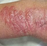 Poison ivy on arm