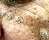 When Skin Damage Takes Sides