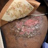 Ulcerated and verrucous plaque on the chest