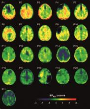 Maps showing the concentrations of tau protein in the brains of patients with traumatic brain injury and healthy controls.