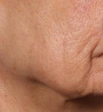 This is the patient at day 90 after one treatment with an investigative dermal microcoring device being developed by Cytrellis. The device removed 5% of the treated skin.