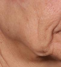 This photo shows the patient's mid and lower cheek and jawline before treatment.