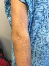 There are numerous papules and plaques with overlying scale on the 17-year-old male's upper arm.