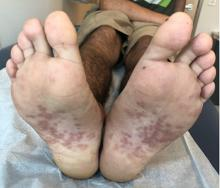 There are many dark pink papules and plaques with overlying scale on the soles of the feet of the 17-year-old male.