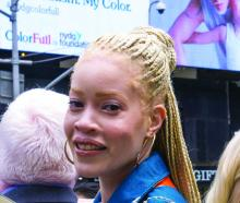 Ms. Diandra Forrest, a model and advocate with albinism