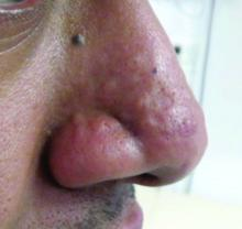 Nasal papules in a patient with a history of acne.