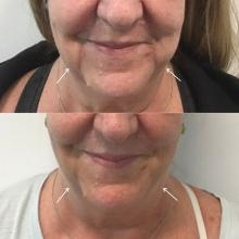 A patient before and after three deoxycholic acid treatments of the jowl overhang.
