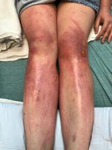 Legs with linear erythematous patches and linear bullae