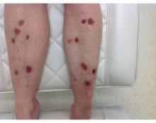 A patient with over 25 basal cell carcinomas on her lower legs, before treatment and starting nicotinamide as preventive treatment.