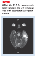 MRI of Ms. A's 3.0-cm metastatic brain tumor in the left temporal lobe with associated vasogenic edema