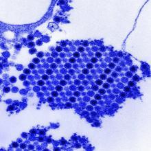Shown is the Chikungunya virus.