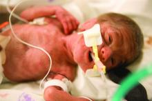 Baby boy born 3 months premature. Here at 2 days of age.