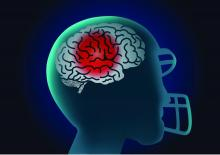 A graphic illustration of the brain of an American football player.