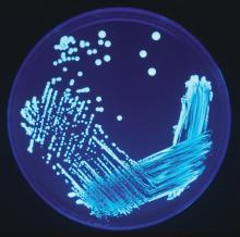 Legionella sp. colonies growing on an en:agar plate and illuminated using ultraviolet light to increase contrast.