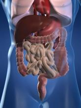 A graphic respresenting a view inside a constipated human body