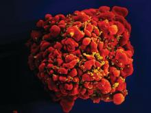 T-cell infected by HIV particles.