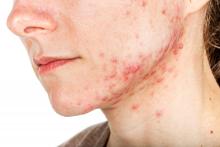 Mandibular acne on a woman's face