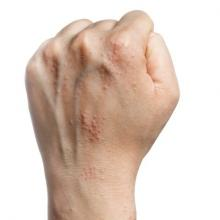 A left hand in a fist, showing atopic dermatitis