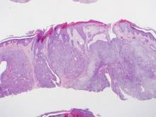 Histopathologic examination revealed an endophytic/exophytic circumscribed neoplasm extending from the epidermis to the mid reticular dermis with several lobules composed of round cells with clear cytoplasm with several scattered ducts (H&E, original magnification ×4).