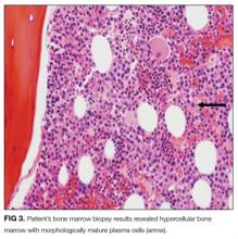Patient's bone marrow biopsy results revealed hypercellular bone marrow with morphologically mature plasma cells (arrow).