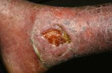 This is a venous ulcer of the leg.