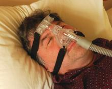 Sleep apnea sufferer being treated by CPAP via mask and air tube from machine.