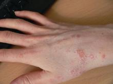 Scabies on right hand, wrist, and arm
