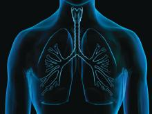 A virtual imagining of an x-ray of the lungs is shown