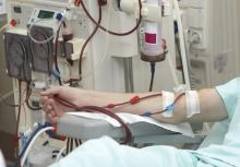 Arm of a patient on dialysis