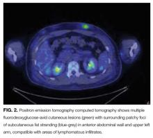 Positron emission tomography computed tomography shows multiple fluorodeoxyglucose-avid cutaneous lesions (green) with surrounding patchy foci of subcutaneous fat stranding (blue-grey) in anterior abdominal wall and upper left arm, compatible with areas of lymphomatous infiltrates