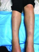 Pink round and annular plaques over shins