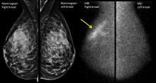 Mammogram versus molecular breast imaging