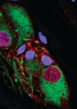 Staining revealed that healthy appendixes contain alpha - synuclein (red), a protein that is a constituent of the Lewy bodies observed in Parkinson's disease