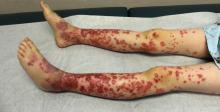 Henoch Schonlein purpura on the lower extremities in a 9-year-old boy