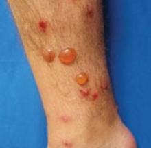 Pruritic Blisters On Legs And Feet Mdedge Family Medicine