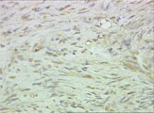 Immunohistochemical staining with S-100 protein highlighted the localization of neuroid tissues (original magnification ×40).
