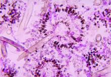 Aspergillosis histology shows the presence of conidial heads.