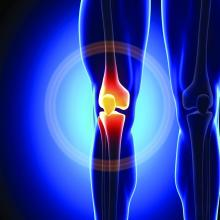 A computer graphics rendered representation of a person's knee joint.