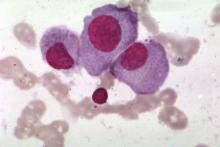 Microscopic multiple myeloma cells are shown.