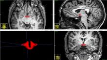 Magnetic resonance images show a reduced hypothalmus volume in women on OCs.
