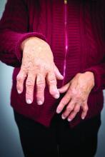 Hands of a woman with rheumatoid arthritis