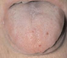 Superficial telangiectasias of the tongue.