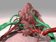 A virus infects the tumor and delivers an enzyme, which activates a chemotherapeutic prodrug.