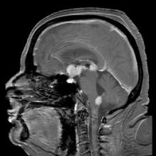 Brain MRI showing primary central nervous system B-cell non-Hodgkin lymphoma of the sella turcica and hypothalamus, continuing to the tectum.