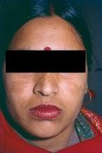 Used alone or with other modalities, such as lasers, vitamin C was effective in treating melasma, as seen here.