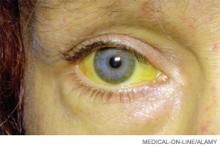 A female patient with jaundice caused by liver disease. Discoloration is due to high levels of the bile pigment bilirubin, which can extend to other tissues and body fluids.